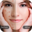 Face Blemish Remover